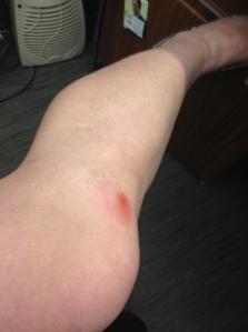 Torn knee
